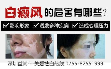 深圳白斑医院介绍白斑的病因病机主要有哪些