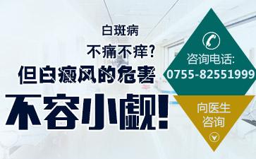 深圳白斑病治疗医院讲解学会正确面对白癜风