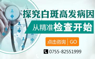 治疗白癜风深圳市那家好?白斑会造成传染吗