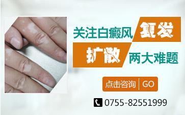 深圳治疗白癜风医院有哪些