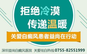 深圳白斑病医院讲解白驳风患者日常生活中的三大危害