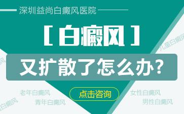 深圳白癜风医院地址